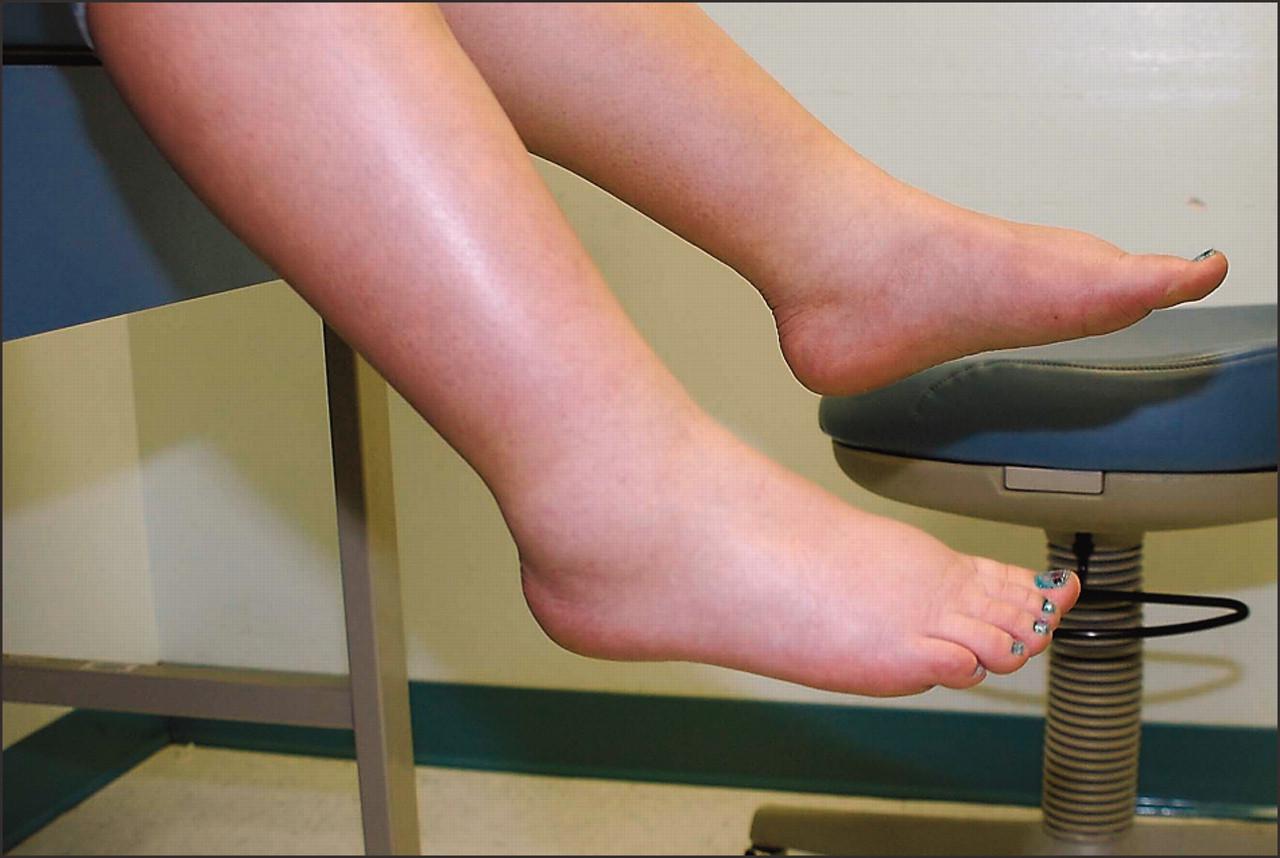 Почему отекают ноги в щиколотках у женщин: чем лечить отек и боль в ноге, причины, что делать