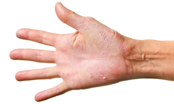 руки шелушатся