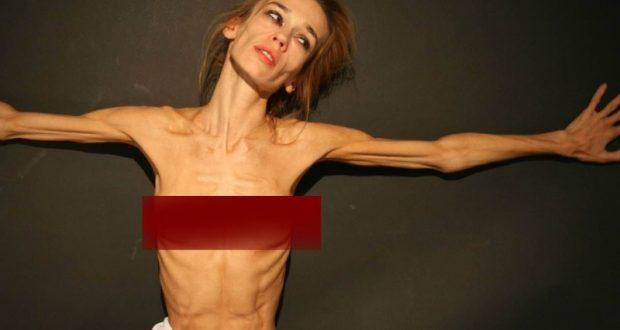 Анорексия у девочки: что это за болезнь и как ее лечить