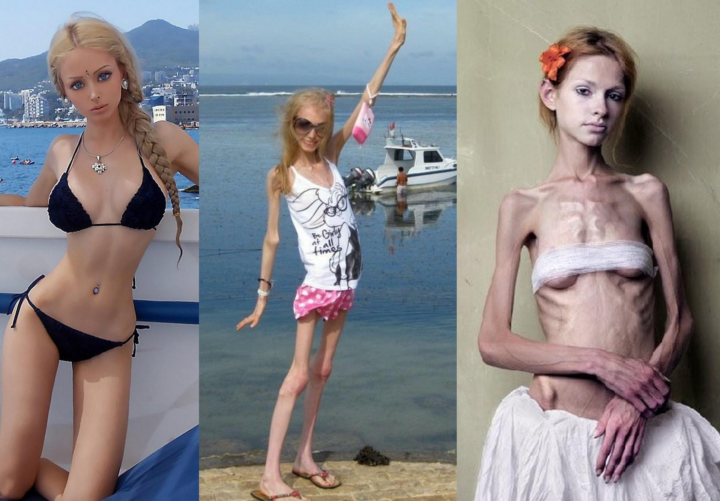 Что такое анорексия и как ее лечить