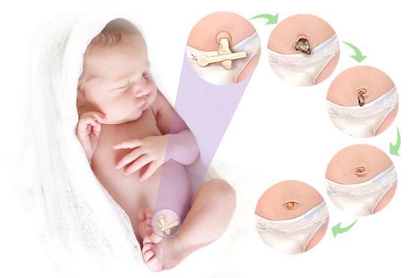 кровоточит пупок у новорожденного на второй неделе