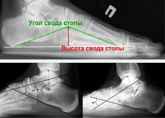 рентгенография при плосостопии
