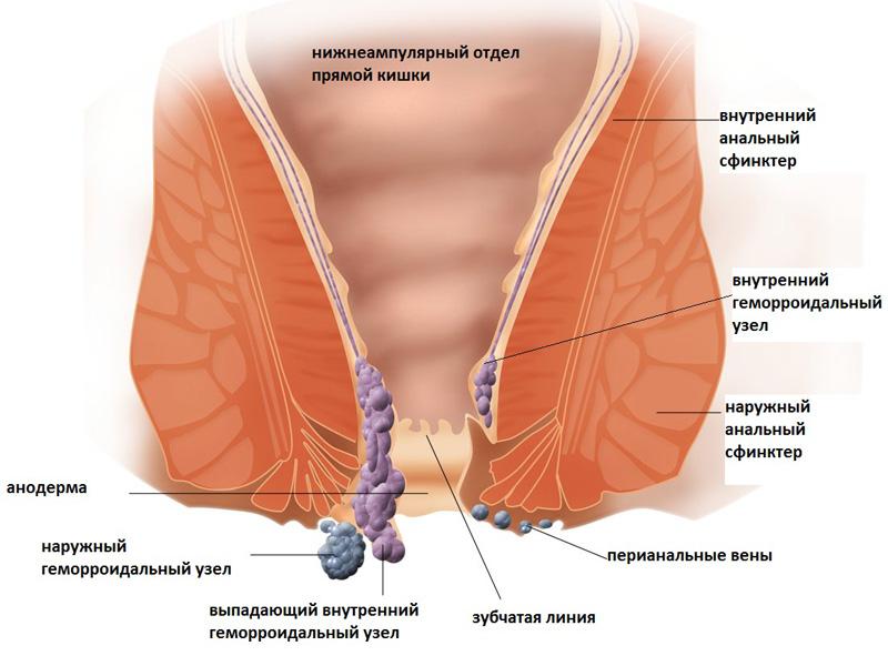Геморрой при беременности симптомы
