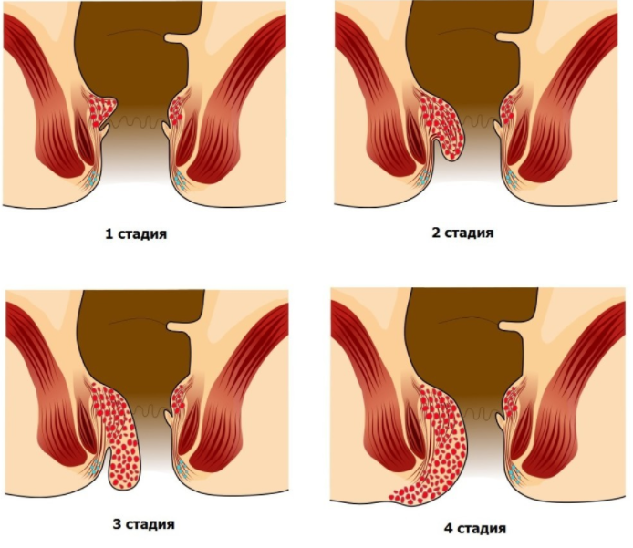 Геморрой во время беременности стадии