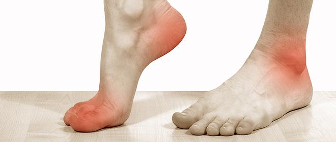 От чего болят стопы ног когда наступают