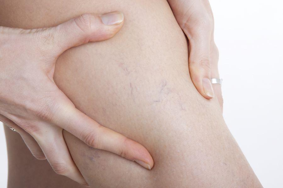 Лечение варикоза флеботониками