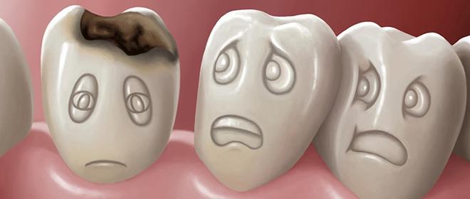 Как можно удалить кариес с зубами