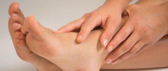 Лечение натоптышей на коже стоп