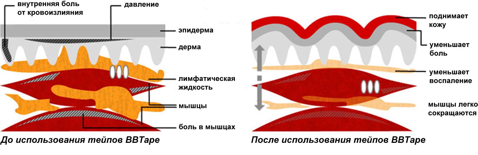 ПРинцип действия кинезиотейпов