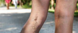 Флеботоники при варикозе ног