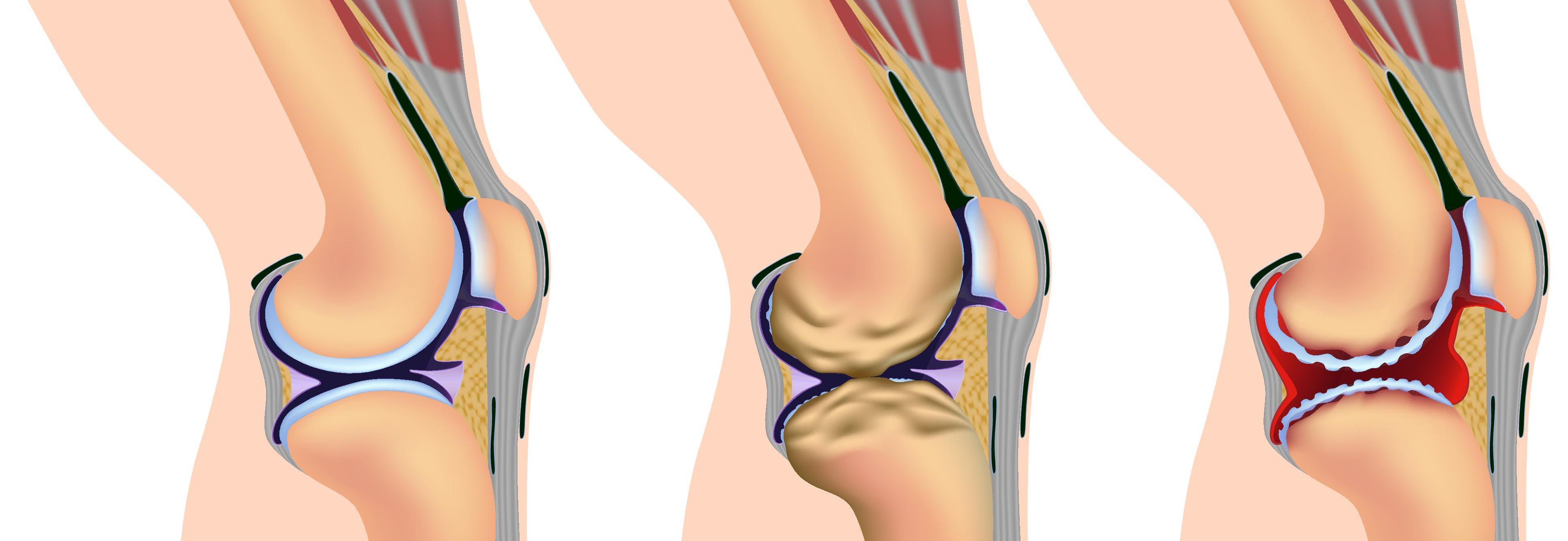 Воспалительный процесс в коленном суставе