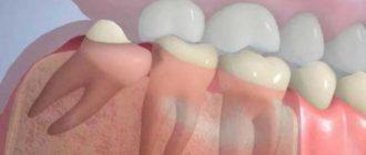 Обязательно ли удалять зуб мудрости