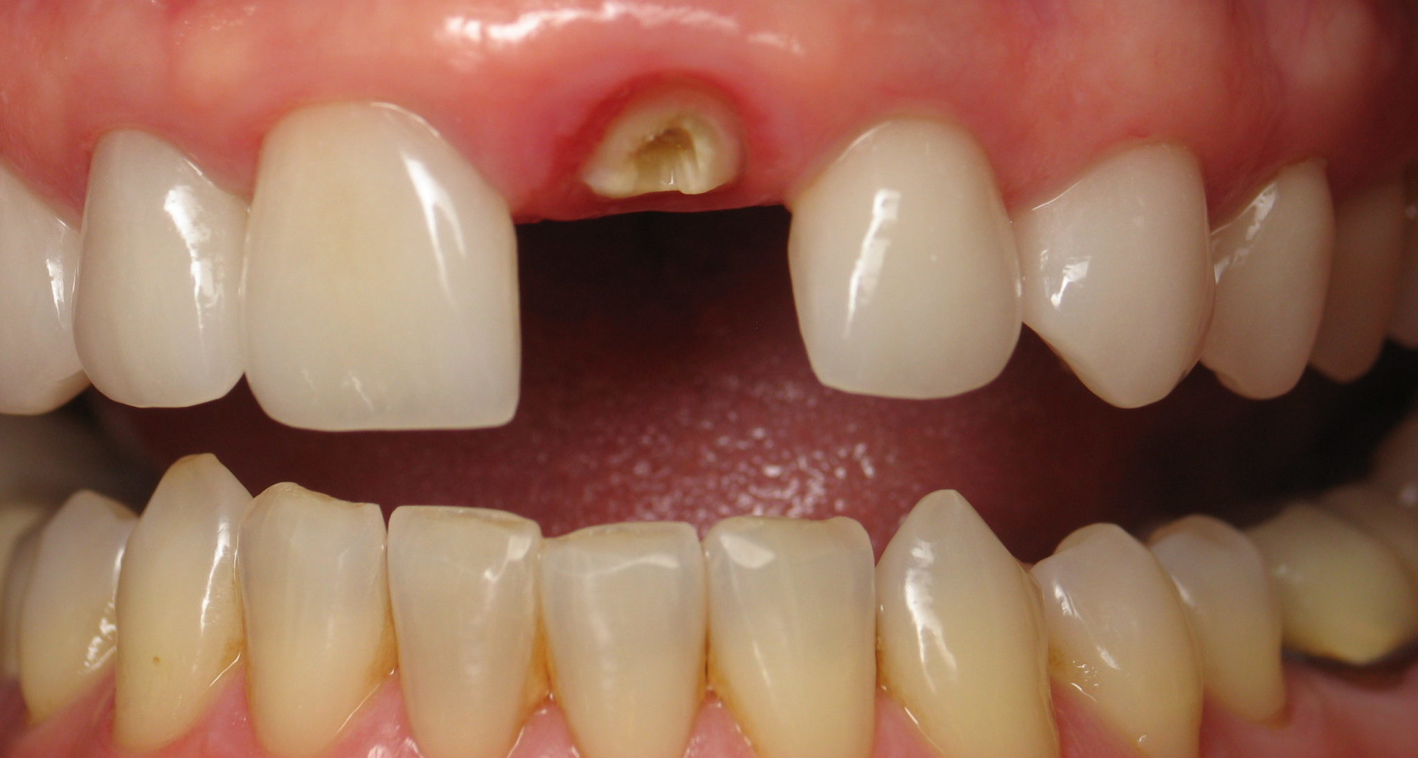 Необходимость коронки на зуб
