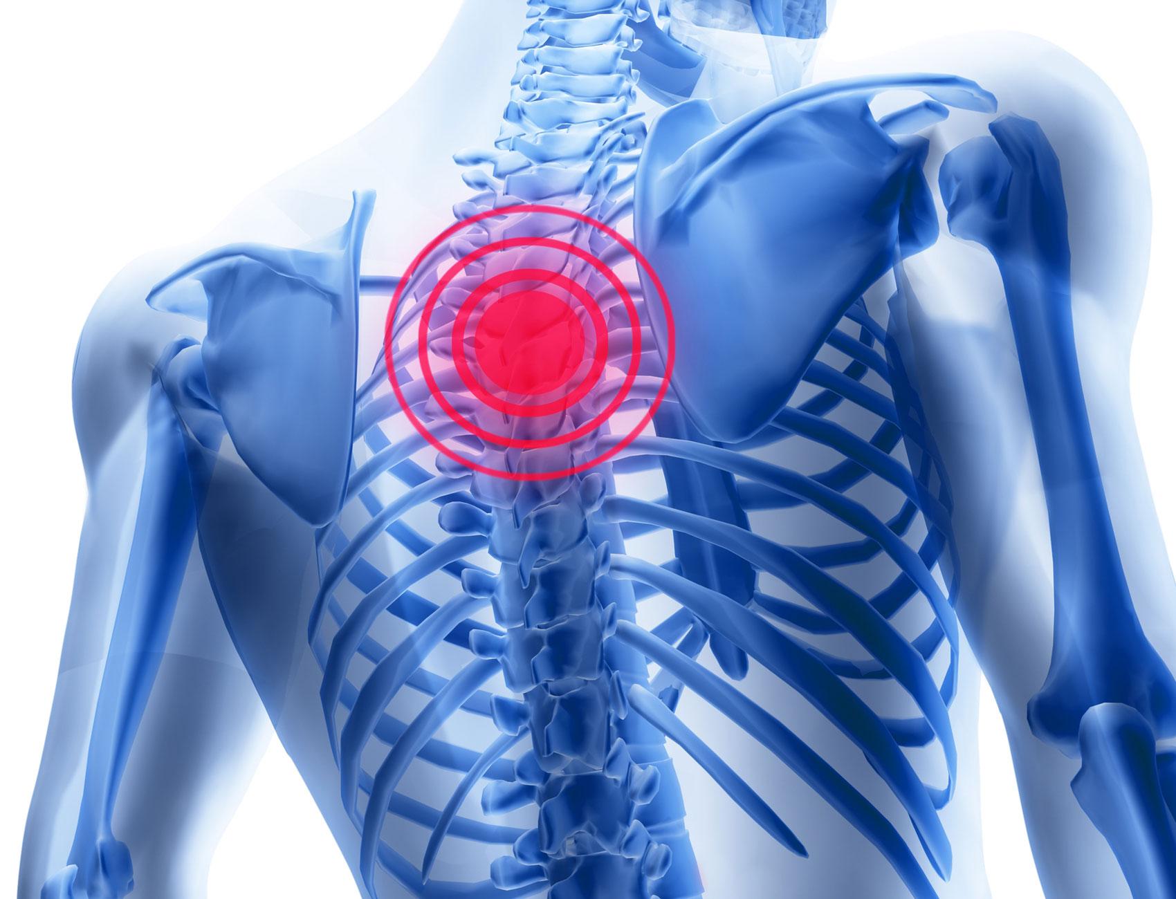 Остеоходоз причина жжения в груди
