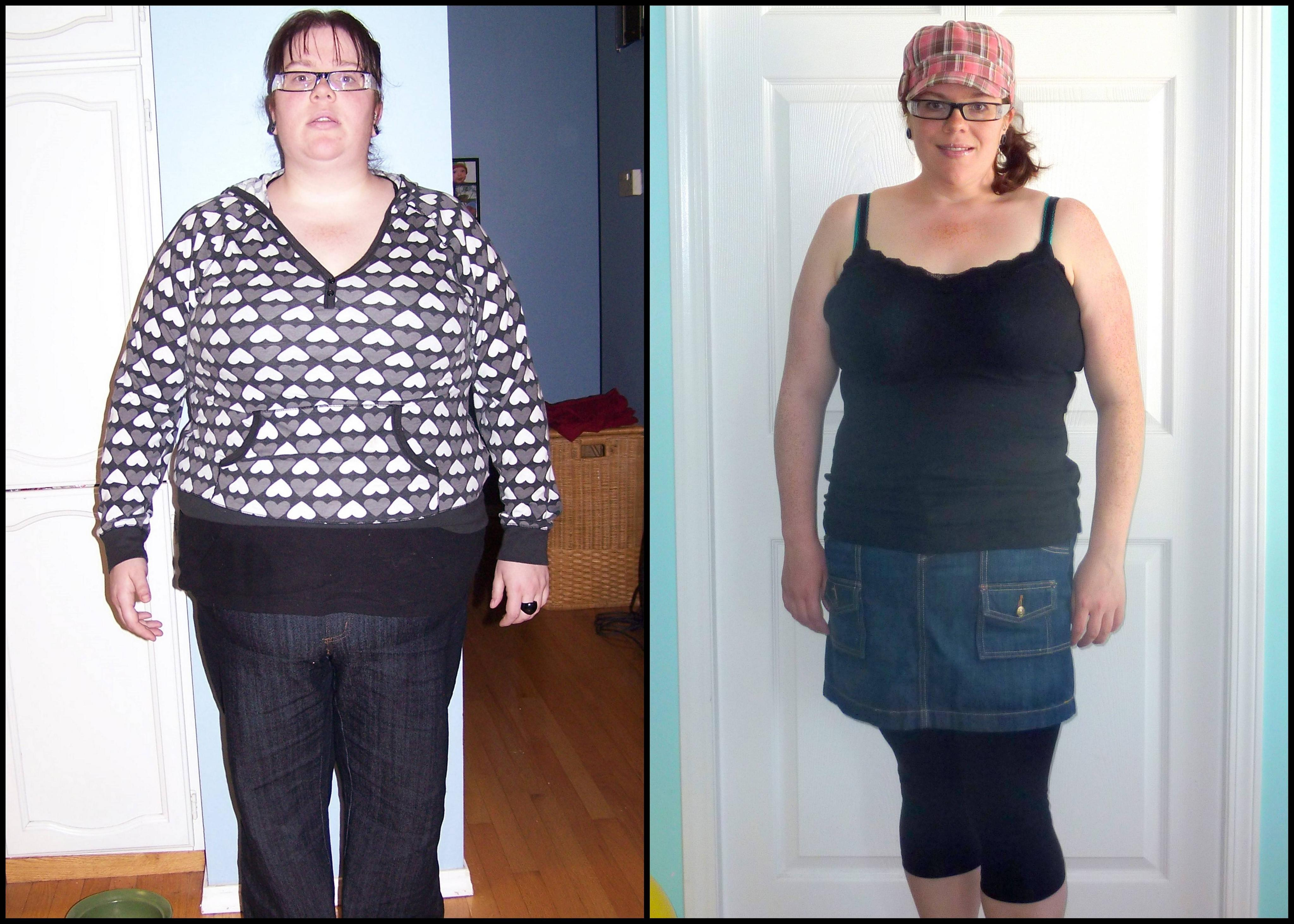 Фото До И После Диет Ру. Реальные истории и фото сильно похудевших людей. Советы и отзывы о методиках похудения