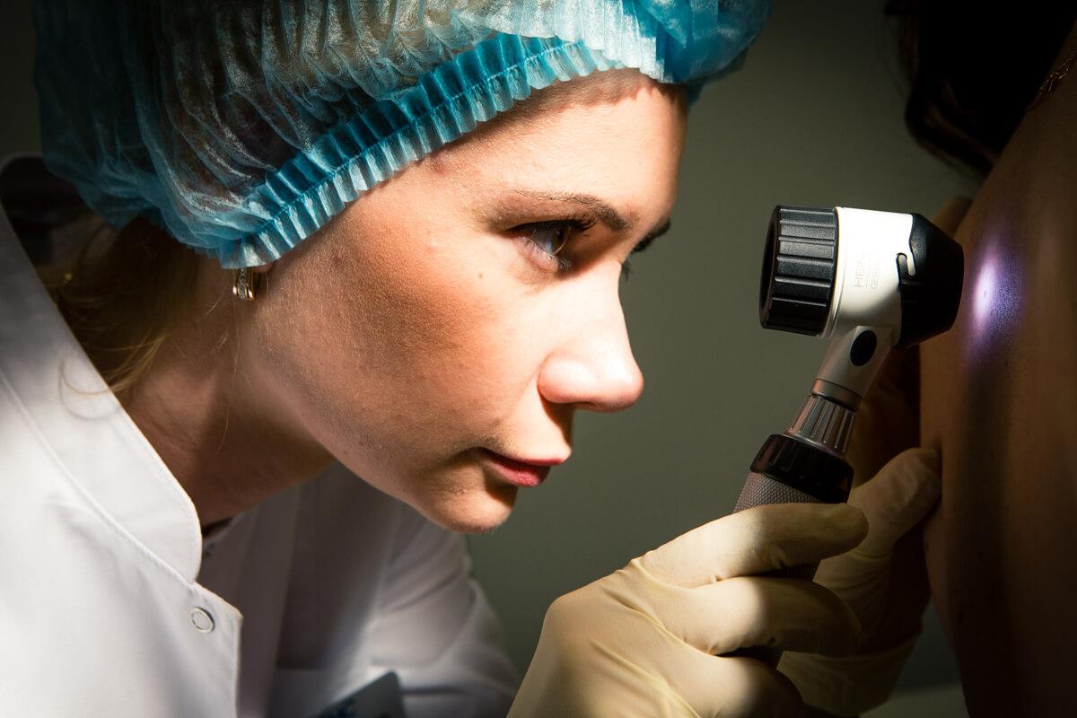 Диагностика невуса дерматоскопом