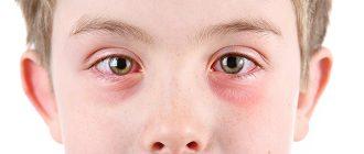 Противоаллергические капли для глаз