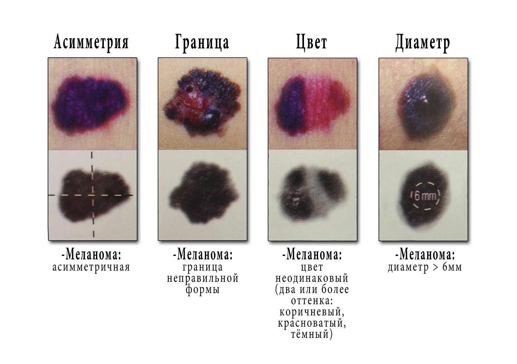 Меланома осложнение невуса
