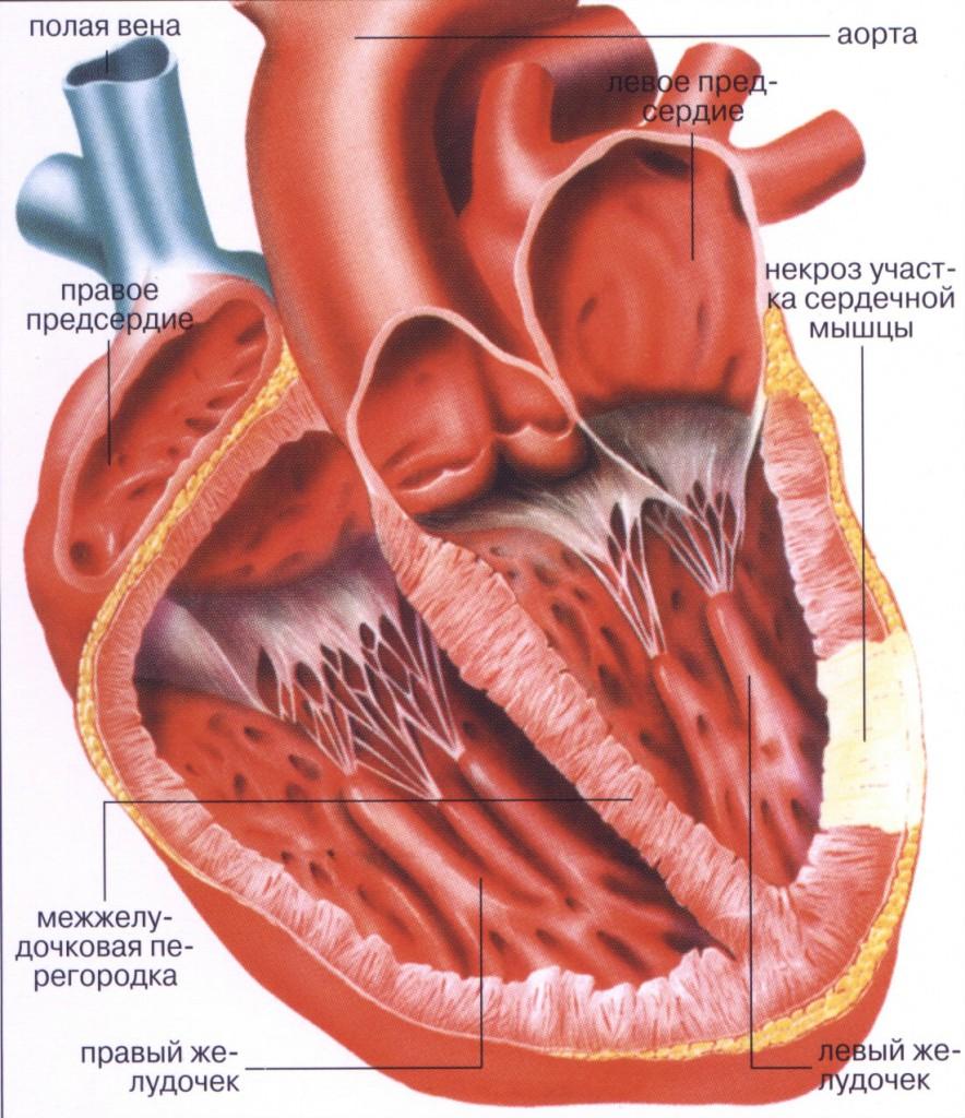 Инфаркт миокарда причина жжения в груди