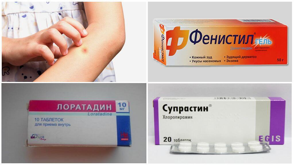 Аллергия дети лекарства