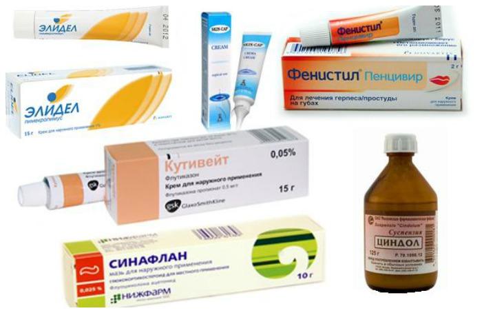 Атопический дерматит лекарства