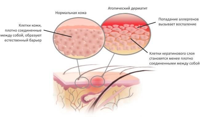 Схема-атопического-дерматита