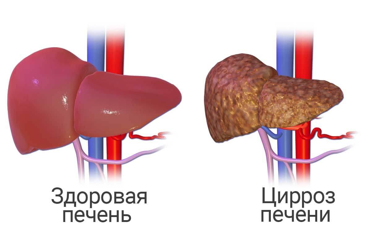 Цирроз печени последняя стадия фиброза