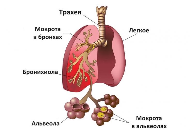причины развития пневмонии