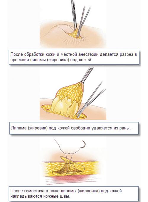 схема удаления липомы