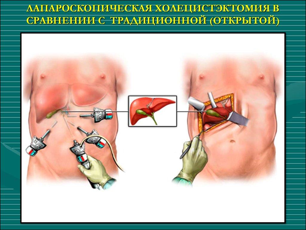 Холицестектомия