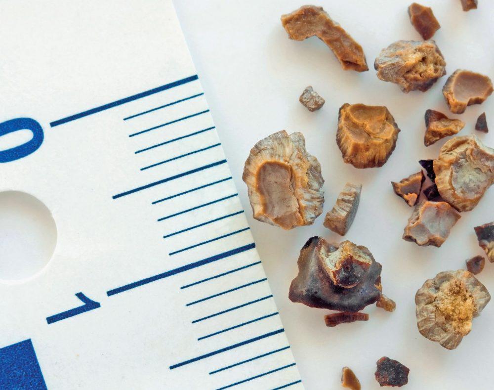 Раздробленные желчные камни
