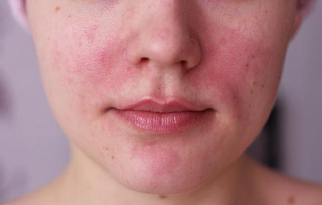покраснение на лице у женщин