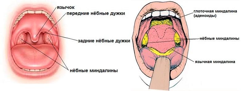 тонзиллит1