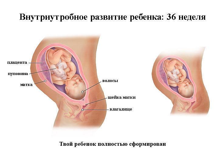 beremennost-36-nedelya-priznaki-simptomy-uzi2019-02-10