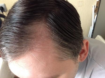 lechenie-androgennoy-alopetsii-u-zhenschin2019-02-12