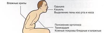 neotlozhnaya-pomosch-pri-bronhialnoy-astme-dovrachebnaya-i-meditsinskaya-pomosch2019-02-12