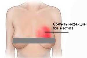vydeleniya-iz-soskov-simptomy-prichiny-lechenie2019-02-12
