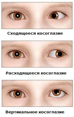 kosoglazie-u-detey-do-goda2019-02-13