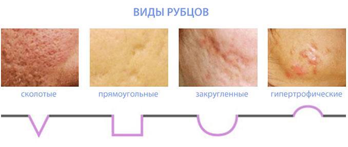 pryschi-na-spine-kak-ih-ustranit2019-02-13