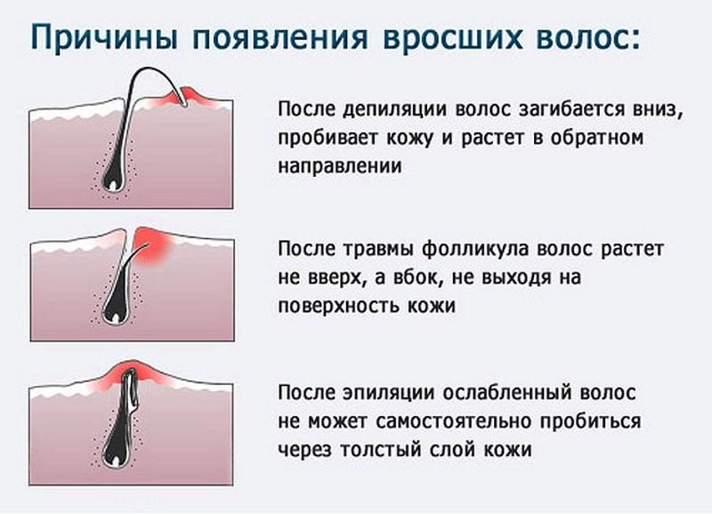 vrosshie-volosy-na-nogah-kak-bystro-i-nadezhno-izbavitsya-ot-problemy2019-02-13